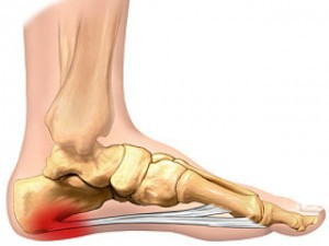 don't let heel pain get your down plantar-fascia_13